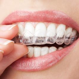 סדים - מעבדת שיניים פוזיטיב